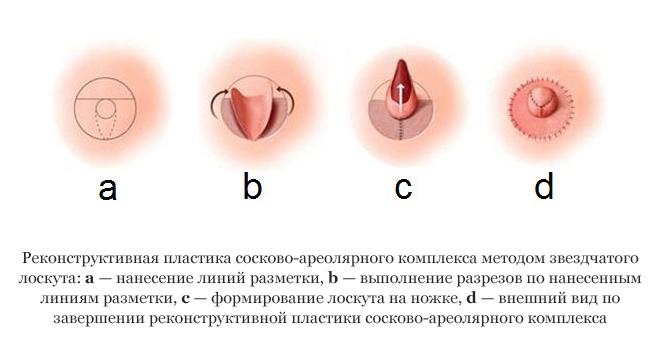 Разновидности сосков женской груди