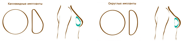 Подтяжка грудных желез без имплантов цена брянск
